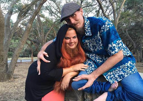 ازدواج زنی با ریش های بلند و مرد خرچنگی (عکس)