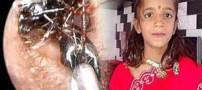 در گوش این دختر 12 ساله مورچه ها لانه ساخته بودند (عکس)