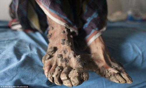 پسری که دست و پای شبیه به ریشه درخت دارد (عکس)