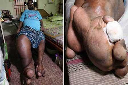 مردی با پاهای غول پیکر و عجیب! (عکس)