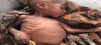 زنده ماندن کودک 2 ساله که 8 ماه در بیابان گم شده بود (عکس)