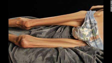 زن 18 کیلویی ترسناک با لاغرترین اندام (عکس18+)