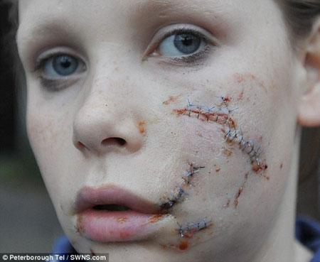 دختر زیبارویی که صورتش را سگ وحشی خورد! (عکس)
