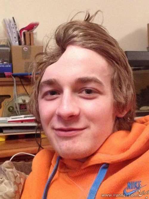پسر 18 ساله که نصف سر دارد (عکس)