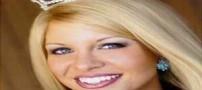 خوشگل ترین دختر جذاب دنیا با سر تاس و کچل (عکس)