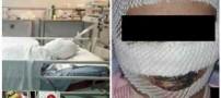 فاجعه هولناک سوختن یک مادر در اتاق زایمان (عکس)