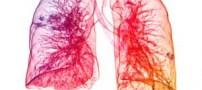 7 عادت غلطی که به ریه های شما صدمه می زند