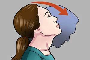 چگونگی درمان کردن گرفتگی گردن