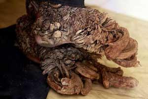 مردی که دستانی شبیه ریشه درخت داشت فوت کرد (عکس)
