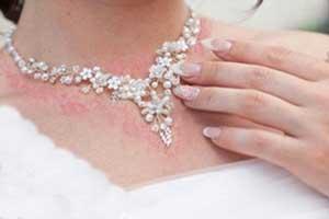 مشکلات پوستی هنگام استفاده از طلا جواهرات