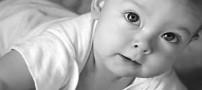 کدام روش ختنه برای نوزاد بهتر است؟