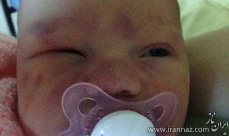 جمجمه نوزادی که در هنگام زایمان کنده شد (عکس)