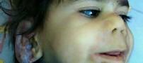 بیماری وحشتناک و نادر کودک 3 ساله ایرانی (عکس)