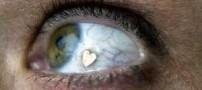 جراحی زیبایی دختری با کاشت نگین در چشم (عکس)