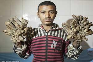 جراحی مردی که دستانی شبیه ریشه درخت داشت (عکس)
