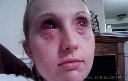 چشمان خون آشامی و ترسناک این زن (عکس)