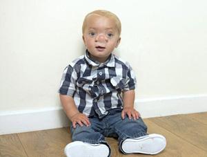 کودکی که به خاطر یک بیماری نادر لقب پینوکیو را گرفت (عکس)