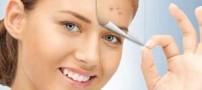 ویتامین هایی که جوش های صورتتان را صاف می کند