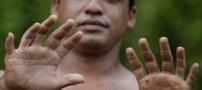 توانایی بسیار عجیب مردی با 24 انگشت! (عکس)