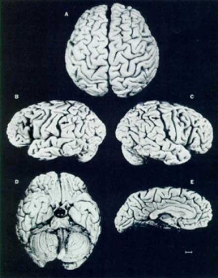 کالبد شکافی مغز انیشتین بعد از مرگ او