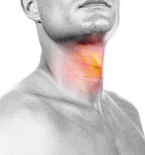علائم و راه درمان سرطان گلو را بشناسید