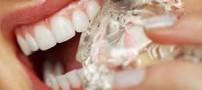 این عادت ها دندان شما را خراب میکند!