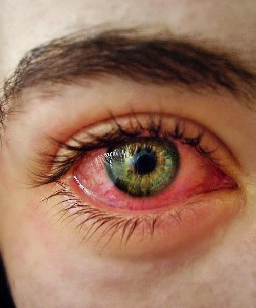 قرمز شدن چشم نشانه ی چیست؟ 1