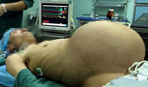 این تومور 15 کیلویی در شکم این مرد است (عکس)