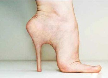 جراحی جنجالی گذاشتن پاشنه برای پای انسان (عکس)