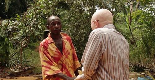 این مرد از قصابی شدن جان سالم به در برد (عکس)