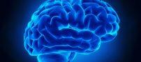 کاهش خطر سکته مغزی با این روش ها