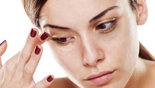 چگونه پف زیر چشم را درمان کنیم؟
