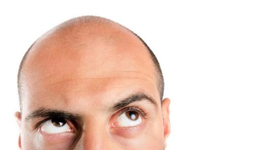 درمان ریزش مو با این روش قطعی