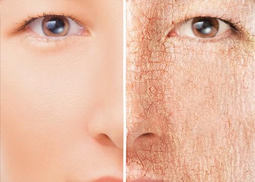 نکاتی مهم درباره ی مراقبت از پوست خشک