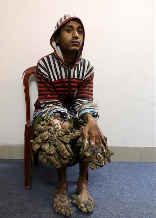 این مرد کم کم تبدیل به درخت می شود!! (عکس)