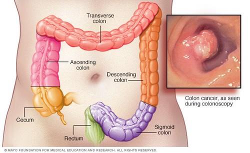 چگونه از سرطان روده بزرگ پیشگیری کنیم؟