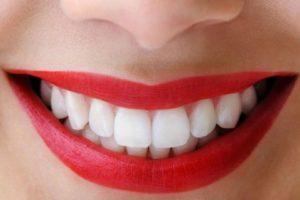 راز داشتن یک لبخند زیبا و جذاب