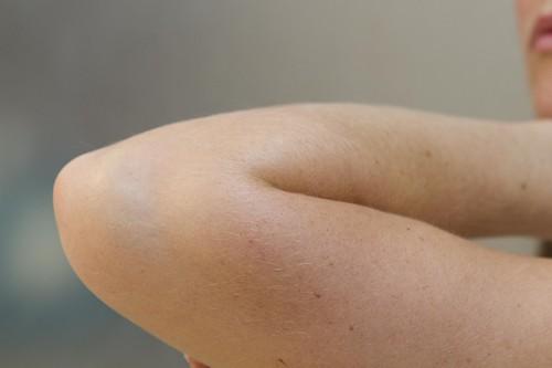 علت سیاه شدن آرنج و سر زانو چیست؟
