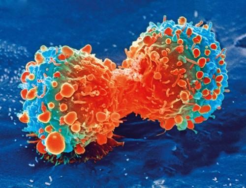 برداشتن تخمدان و امکان مبتلا شدن به سرطان