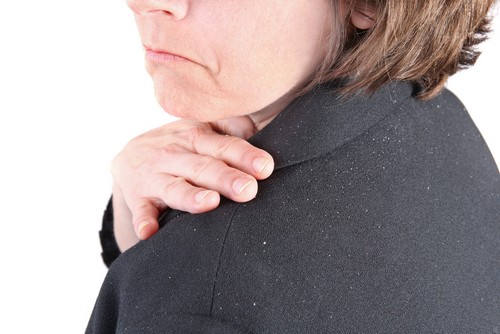 عامل اصلی شوره سر چیست؟