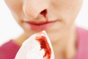 راهی برای متوقف کردن خونریزی