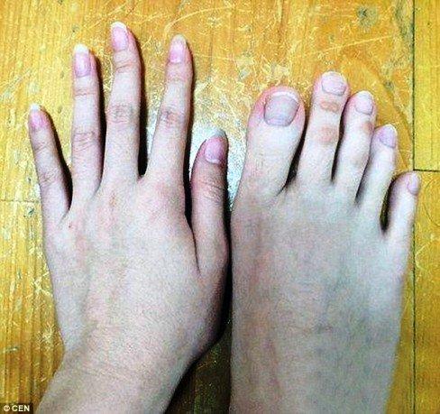 هم سایز بودن انگشتان دست و پای این دختر (عکس)