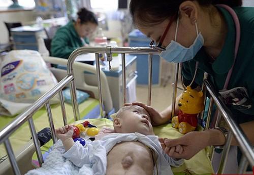 عکس هایی از کودک سر راهی با قلبی خارج از قفسه سینه