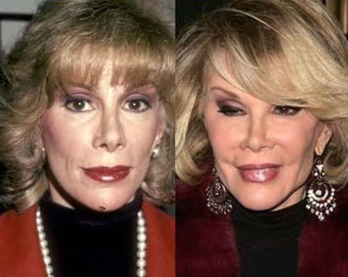 عکس هایی از وحشتناک ترین عمل زیبایی افراد مشهور  عکس هایی از وحشتناک ترین عمل زیبایی افراد مشهور 14671341398380 irannaz com