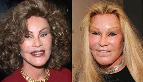 عکس هایی از وحشتناک ترین عمل زیبایی افراد مشهور  عکس هایی از وحشتناک ترین عمل زیبایی افراد مشهور 146713414023232 irannaz com