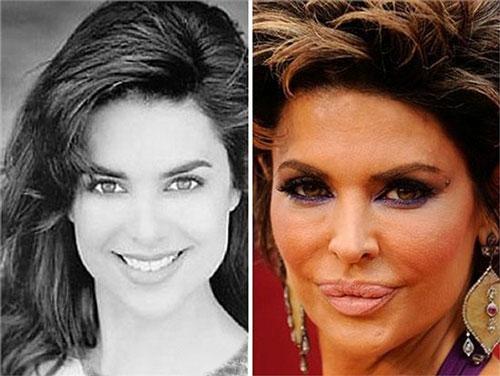 عکس هایی از وحشتناک ترین عمل زیبایی افراد مشهور