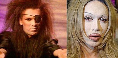 عکس هایی از وحشتناک ترین عمل زیبایی افراد مشهور  عکس هایی از وحشتناک ترین عمل زیبایی افراد مشهور 146713415043159 irannaz com