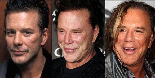 عکس هایی از وحشتناک ترین عمل زیبایی افراد مشهور  عکس هایی از وحشتناک ترین عمل زیبایی افراد مشهور 146713416697629 irannaz com