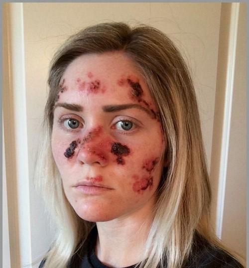 صورت این دختر بعد از برنزه کردن (عکس)