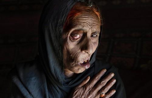 تصاویر دردناک از زخمهایی بر تن زنان افغان  تصاویر دردناک از زخمهایی بر تن زنان افغان 16 1